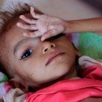 How to stop pending famine in Yemen?